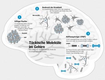 Entstehung und Behandlung von Alzheimer